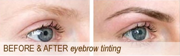 brows before after2